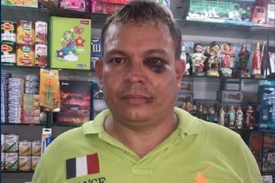 Comerciante víctima de agresión - Pulzo.com