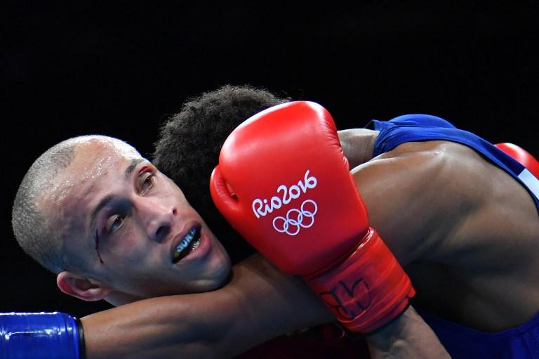 Boxeador brasileño con sangre en su cara. Pulzo.com