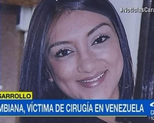 Shirly Alexandra Riaño, víctima de cirugía estética. Pulzo.com
