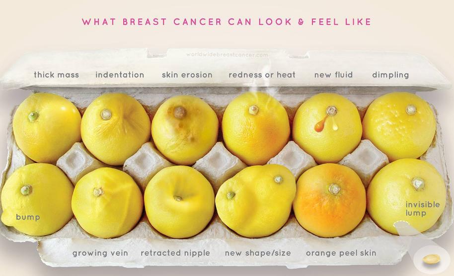 Síntomas de cáncer de seno