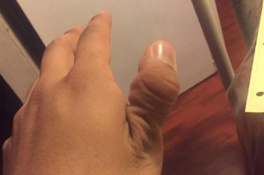 Reto de quebrarse el pulgar