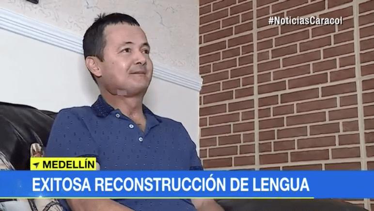 Luis Orlando Sánchez Martínez, paciente que fue sometido a trasplante de lengua en Medellín. Pulzo.com