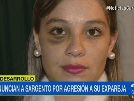 Así le quedó la cara a Angie Rodríguez luego de ser presuntamente golpeada por su expareja, un sargento del Ejército Nacional.