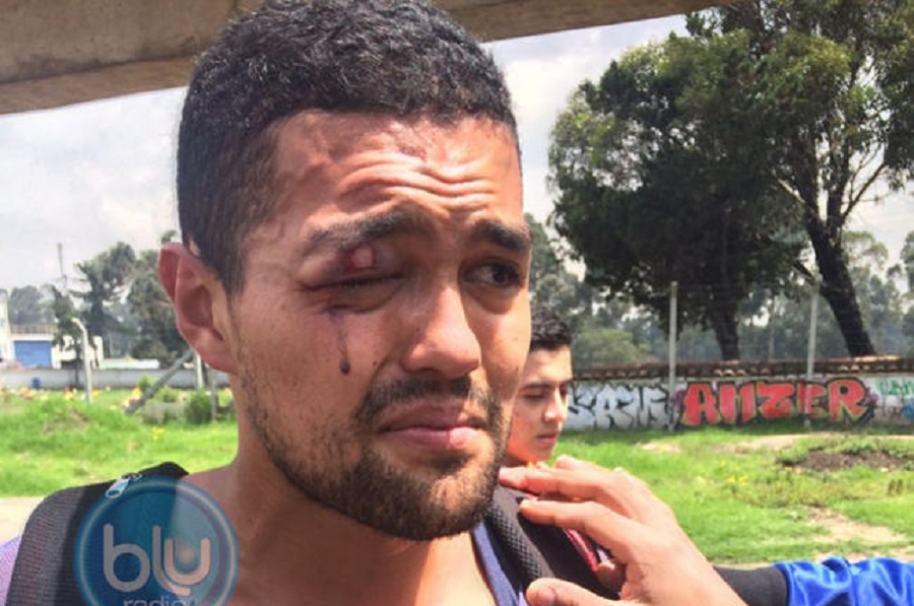 Sebastián Ramírez denuncia la agresión