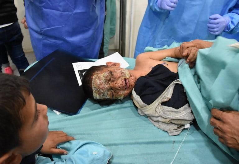 Niño sirio herido por explosión de carro bomba. Pulzo.com