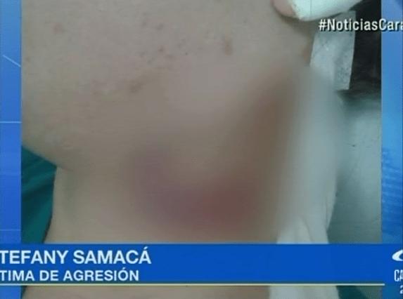Lesión de víctima de agresión por parte de su exnovio. Pulzo.com
