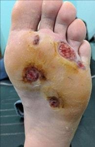 Pie infectado