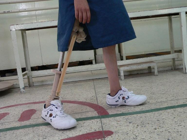 Joven con prótesis de pierna. Pulzo.com