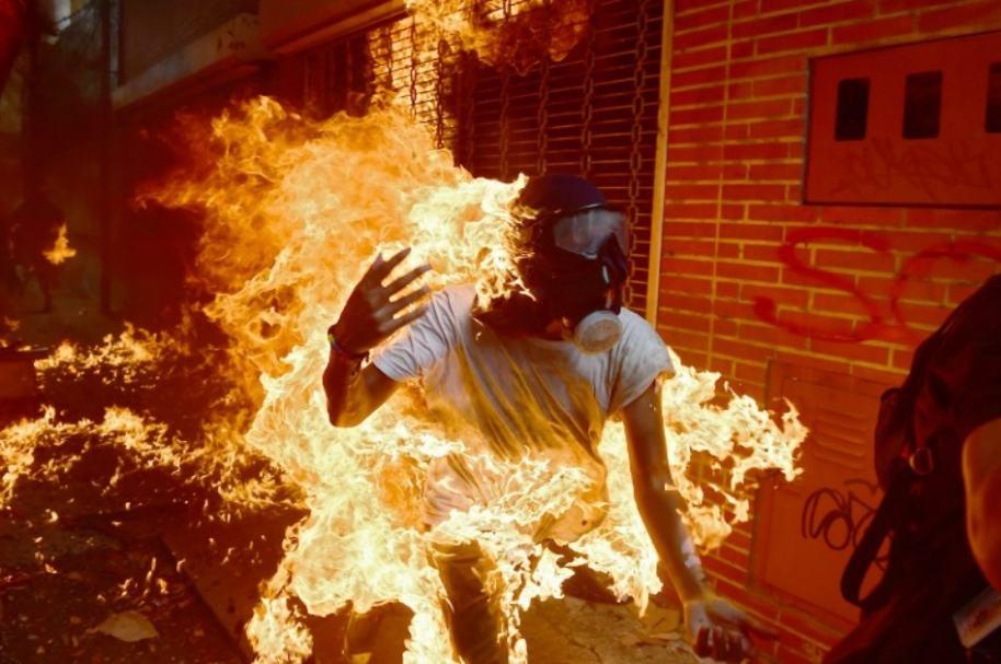 Joven arde en llamas en Venezuela.
