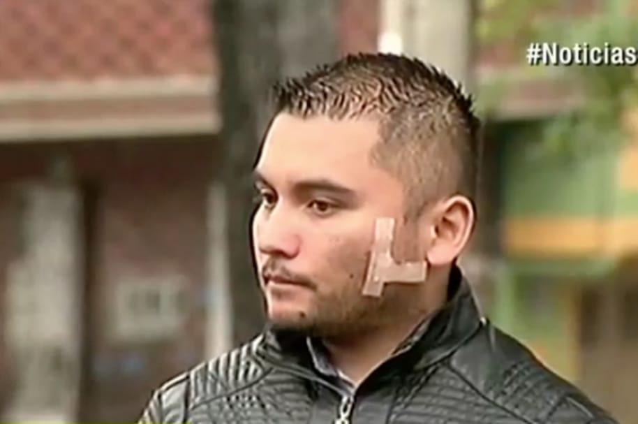 Jonathan Rodríguez, patrullero atacado.