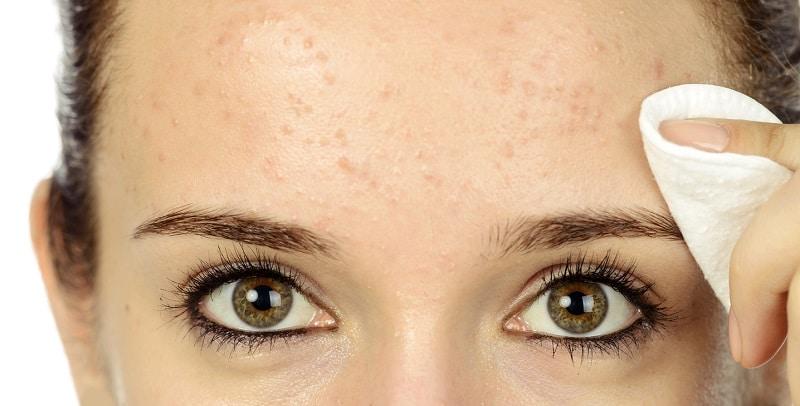 Cómo curar el acné