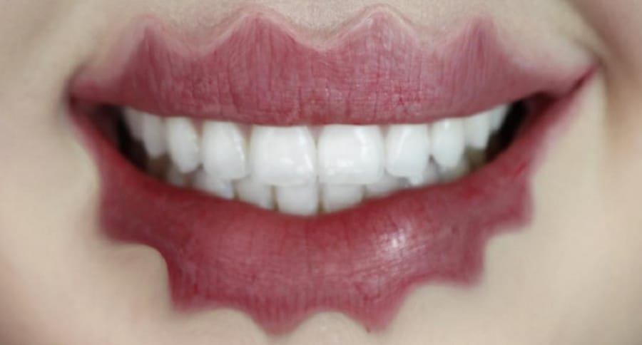 Labios ondulados