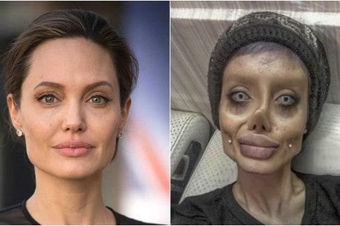 Joven se sometió a más de 50 cirugías para parecerse a Angelina Jolie