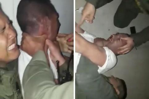Hombre mordiendo a uniformado de la Policía