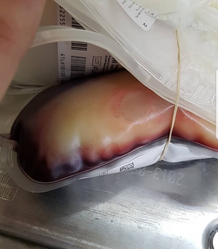 bolsa de sangre llena de grasa