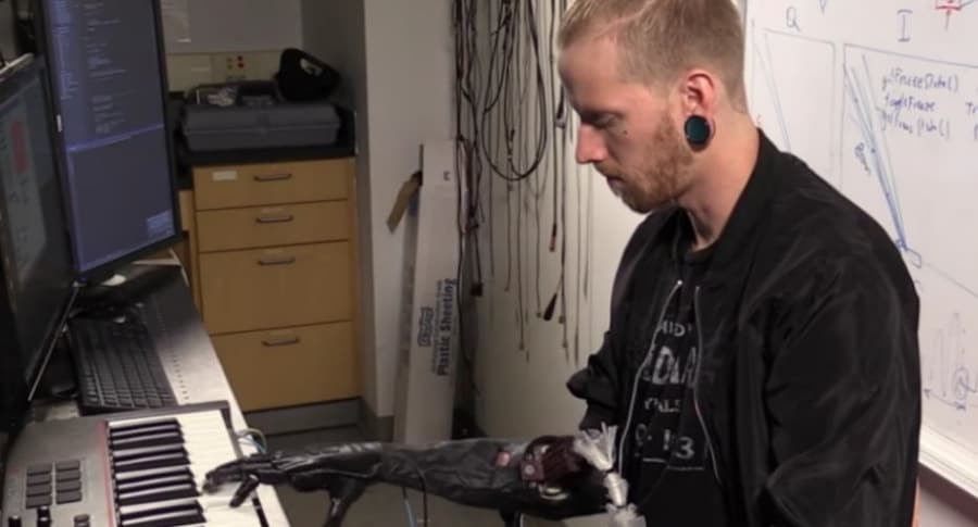 Pianista amputado vuelve a tocar.