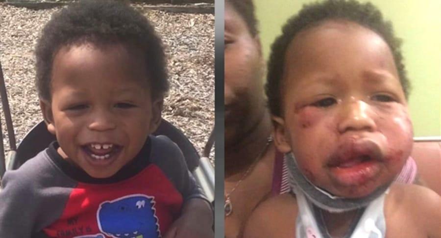 Bebé golpeado