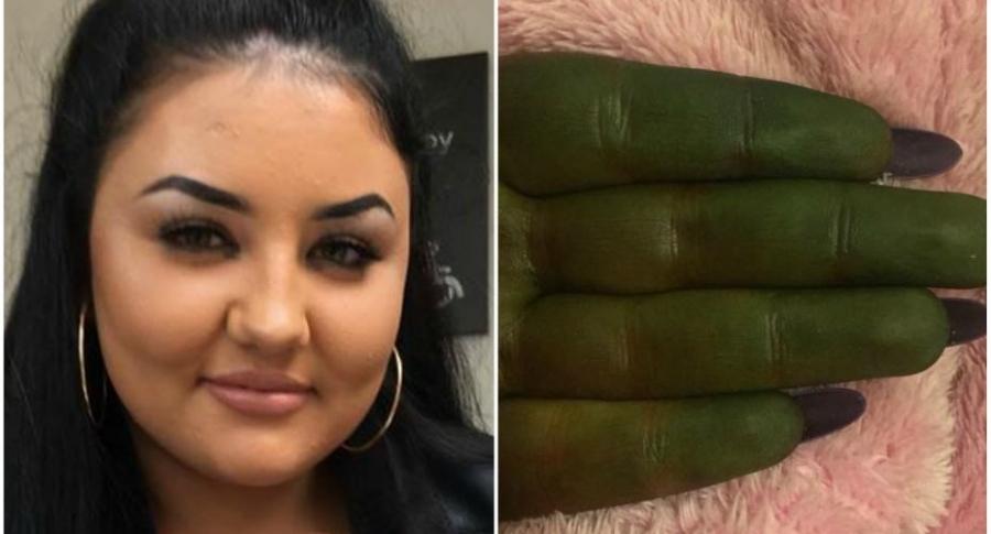 Piel de joven queda verde tras usar bronceador.