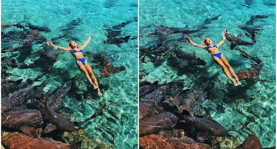 Modelo atacada por tiburón.
