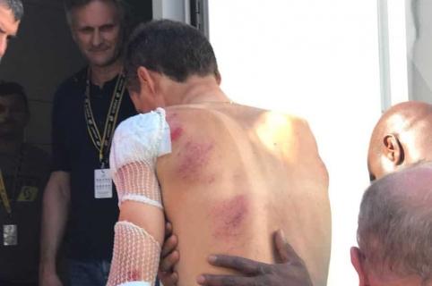 Luis León Sánchez luego de sufrir caída en el Tour de Francia