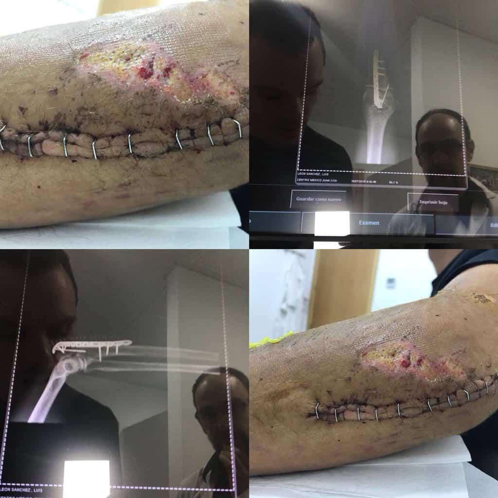 Cicatriz Luis León Sánchez