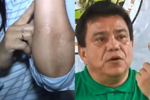 Mujer atacada, Pedro Pestana, EPS Manexka