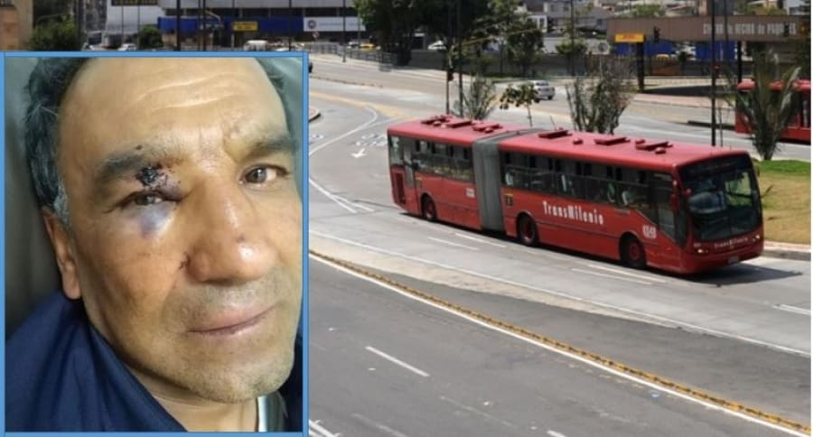 Fabio, operador de aseo de Transmilenio agredido