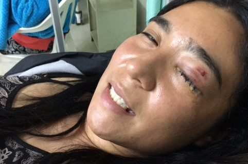 Keira Henao, estudiante herida.
