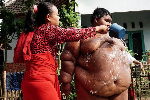 Niño más gordo del mundo.