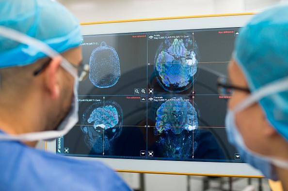 Estudios del cerebro