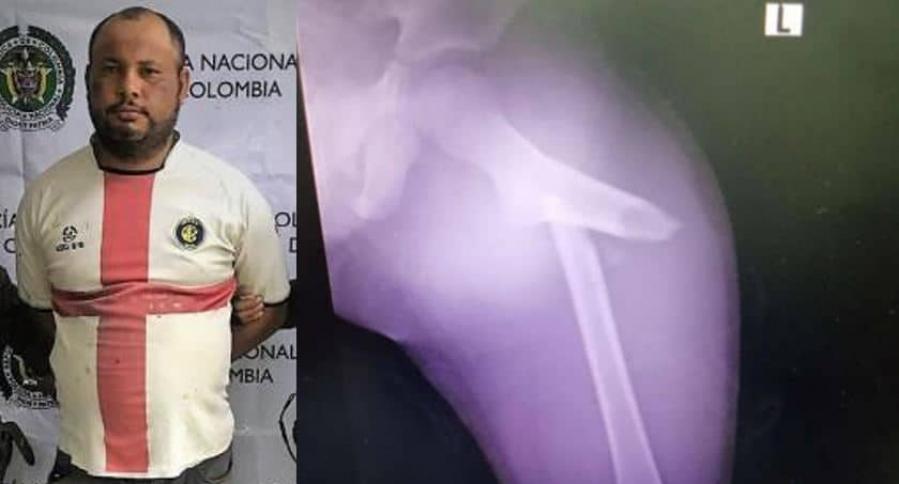 Robinson Solano y radiografía del niño