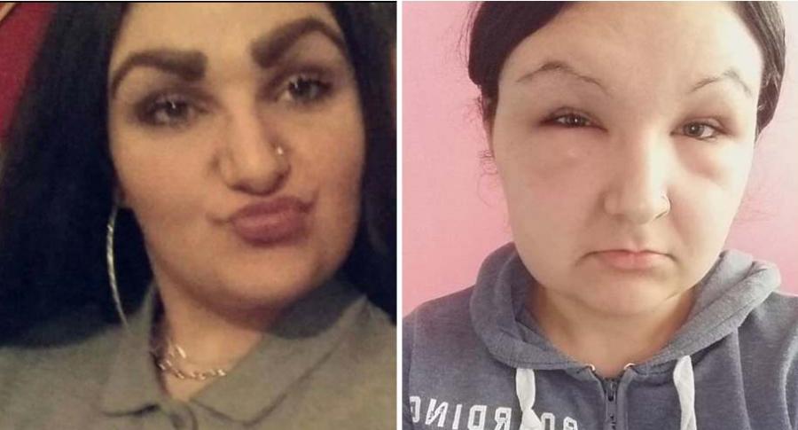 Mujer termina con la cara deformada.