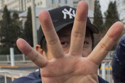 Hombre mostrando sus dedos