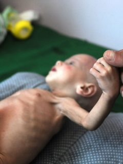Niño yemení con desnutrición crítica