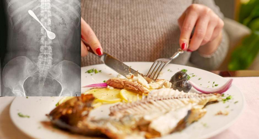 Mujer se pasa espina de pescado y una cuchara.