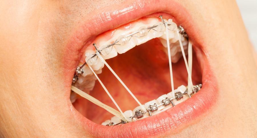 Cauchos de ortodoncia