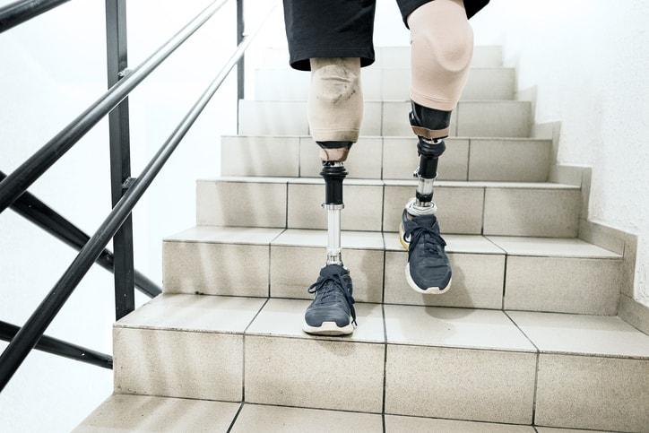 Hombre con piernas protésicas bajando las escaleras