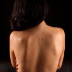 Mujer con acné en la espalda