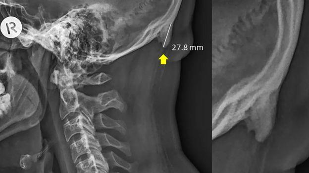 Protuberancia occipital