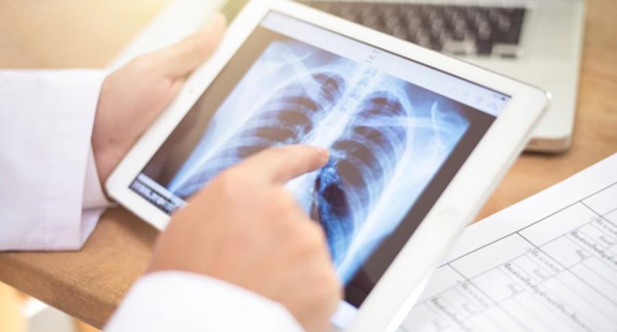 Imagen de pulmón.