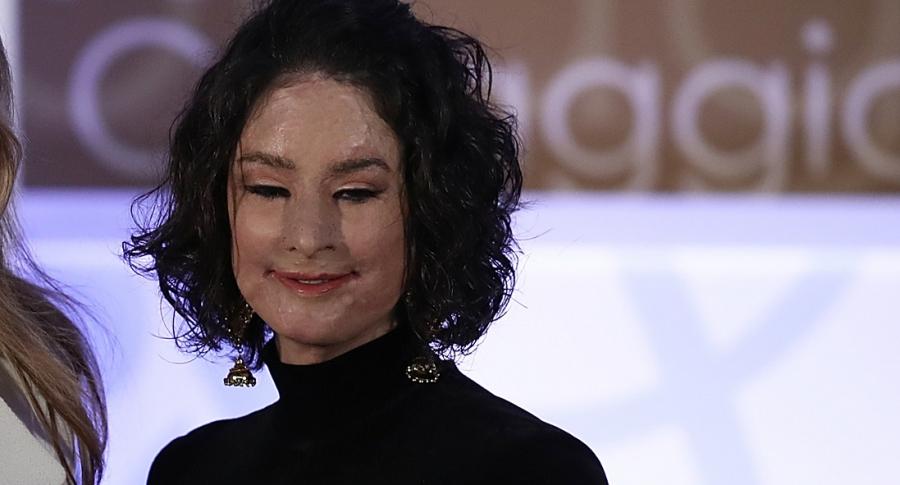 Natalia Ponce, víctima de ataque con ácido.