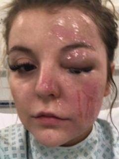 A mujer le explotan huevos por hervirlos en microondas; casi pierde la visión de un ojo