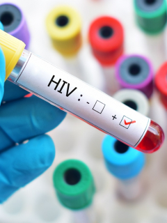 Este es el tratamiento para tratar el cáncer que podría ser la cura para el VIH