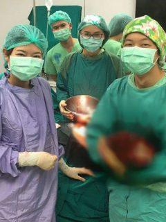tumor Tailandia