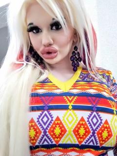 Mujer que quiere tener los labios más grandes del mundo ya se ha puesto relleno 15 veces