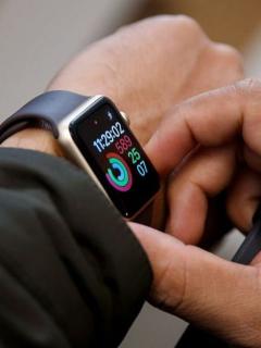 [Fotos] Sufrió grave caída en bicicleta, pero su Apple Watch le salvó la vida
