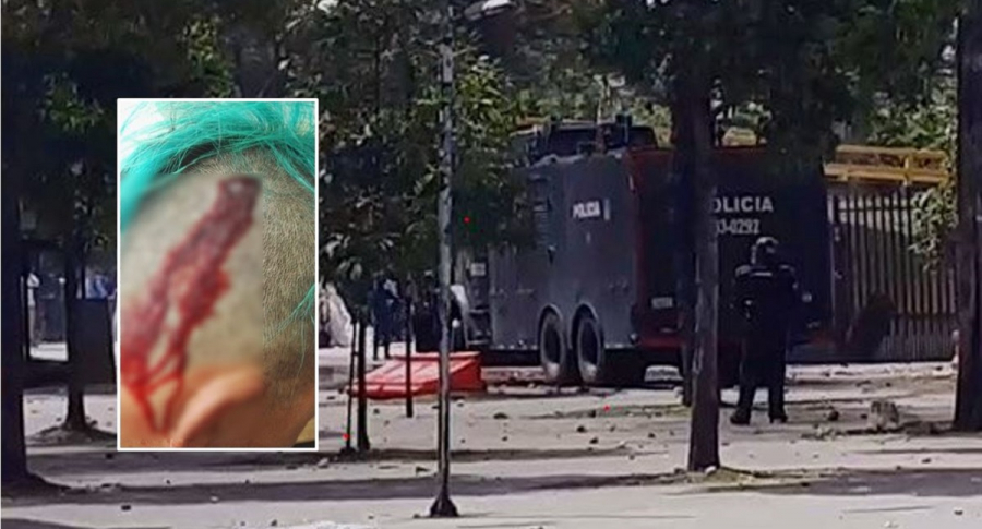 Herida a Santiago Rico y disturbios en la Universidad Nacional