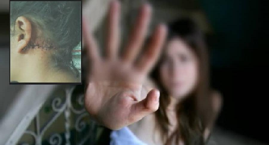 Mujer agredida por su exnovio
