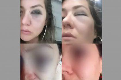 Periodista agredida.