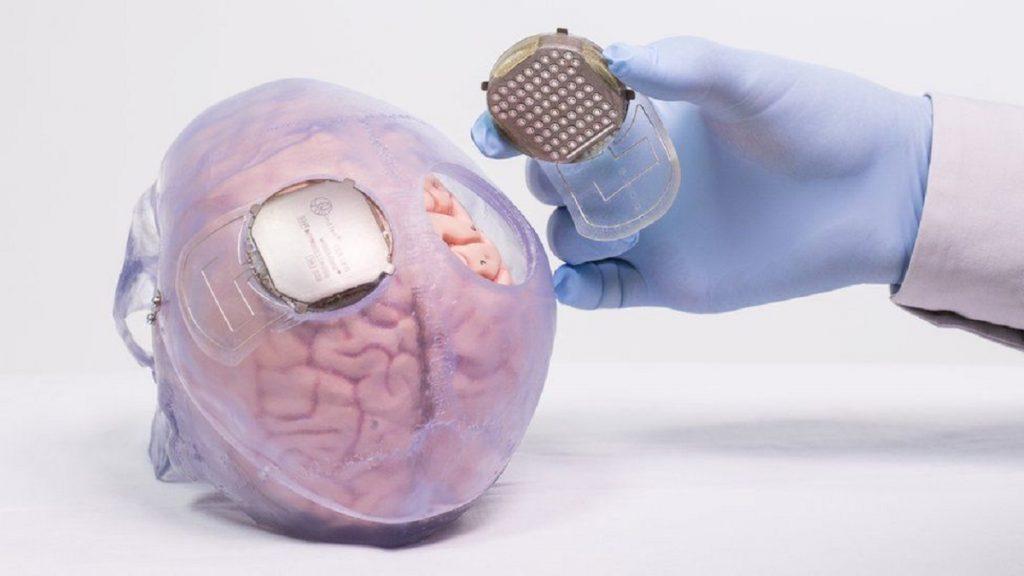 Thibault tiene dos implantes en su cerebro